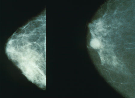 More details Normal (left) versus cancerous (right) mammography image. Wiki.