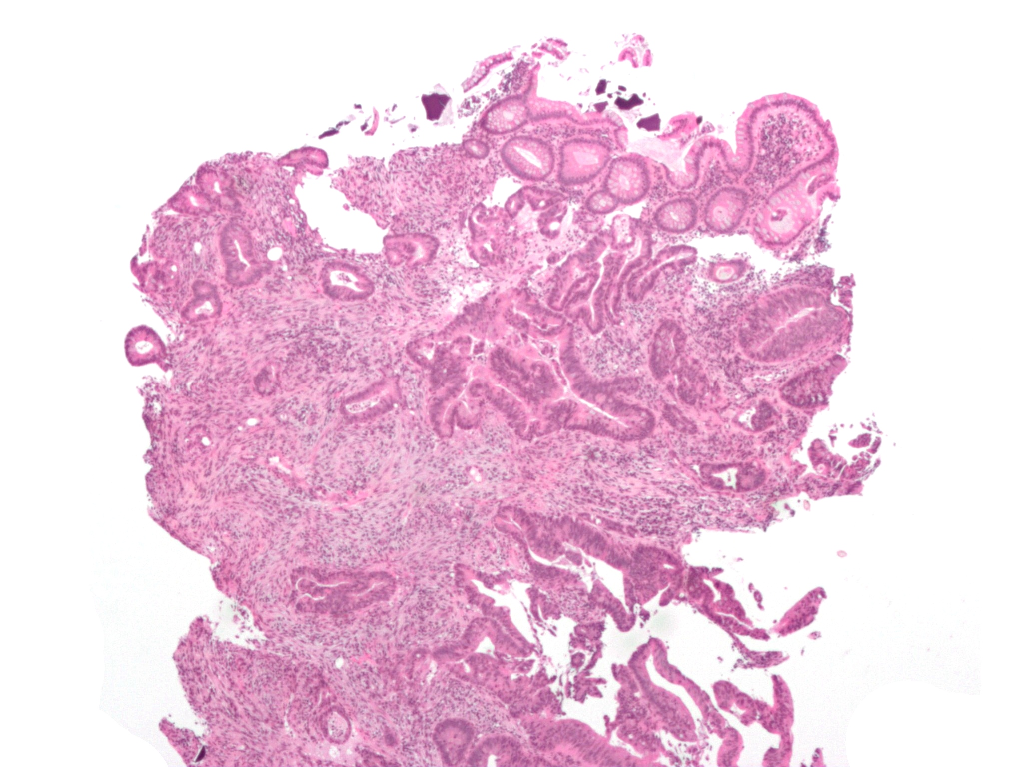 Micrograph of an invasive cecal adenocarcinoma -- a type of colon cancer. Via Wikimedia.
